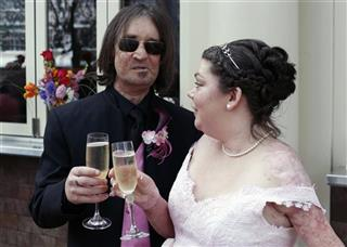Face Transplant Wedding