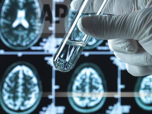 Pharmaceutical research into brain disorders including dementia and alzheimer's