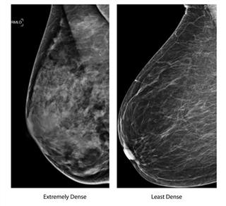 HealthBeat Breast Density