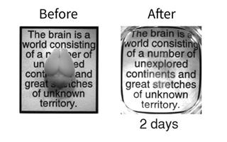 Transparent Brains