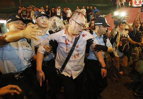 Police take an injured man from the confrontation of pro-democracy student protesters and angry local residents in Mong Kok, Hong Kong, Friday, Oct. 3, 2014. Pushing and yelling, hundreds of Hong Kong residents tried to force pro-democracy activists from the streets they were occupying Friday as tensions rose in the weeklong protests that have shut down parts of the city.