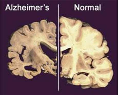 Alzheimer's Research