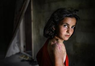 Mideast Syria Children