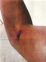This photo provided by the Los Angeles County Superior Court shows what appears to be a wound closed by stitches on the arm of John Conyers III's former girlfriend. The photo was introduced as evidence when the woman filed for a restraining order against Conyers, the son of former Democratic Rep. John Conyers, after he was arrested in February 2017 in Los Angeles on suspicion of domestic violence. Prosecutors declined to bring charges, saying they didn't have independent witnesses and didn't believe they could prove the injuries weren't accidental. (Los Angeles County Superior Court via AP)